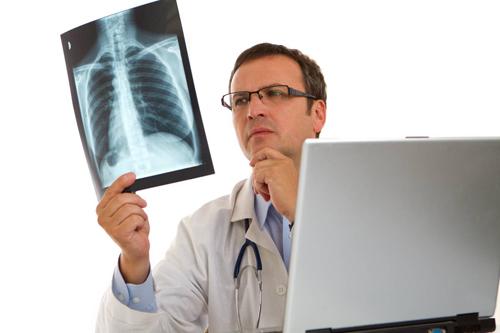 ung thư phổi có chữa khỏi không
