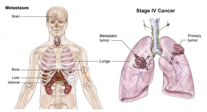 Ung thư phổi di căn