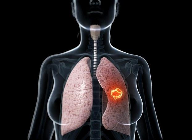 ung thư phổi nguy hiểm
