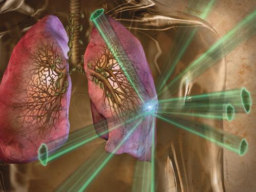 xạ trị ung thư phổi