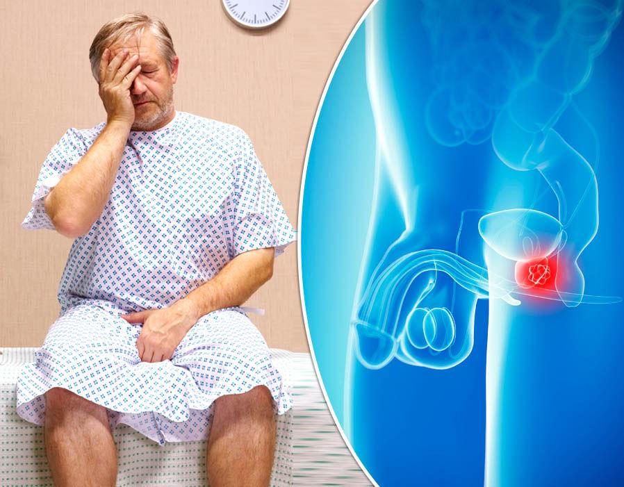 Ung thư tuyến tiền liệt có nguy hiểm không