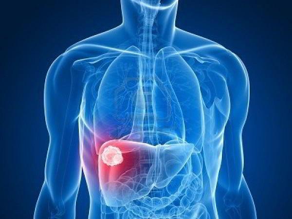 Giải đáp 12 câu hỏi về ung thư gan