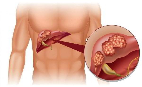 Ung thư gan có 4 loại chính