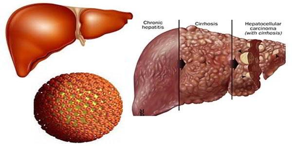 ung thư gan thường ít di căn