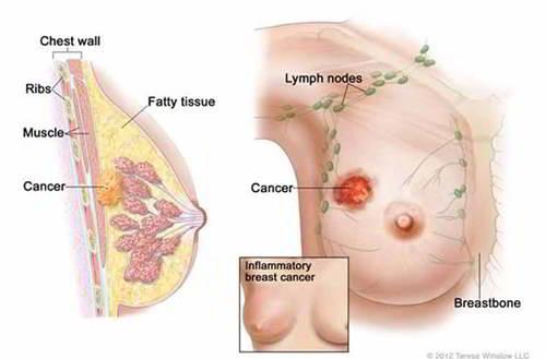 nguyên nhân mắc ung thư vú