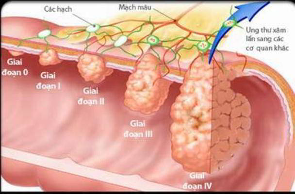 các giai đoạn phát triển ung thư dạ dày