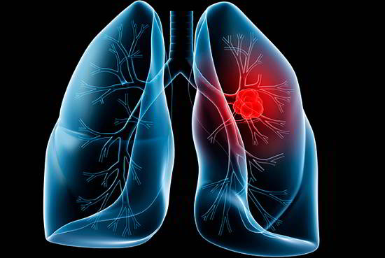 Fucoidan hỗ trợ điều trị ung thư phổi