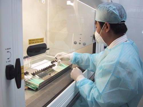 Xét nghiệm đờm giúp chẩn đoán ung thư phế quản.