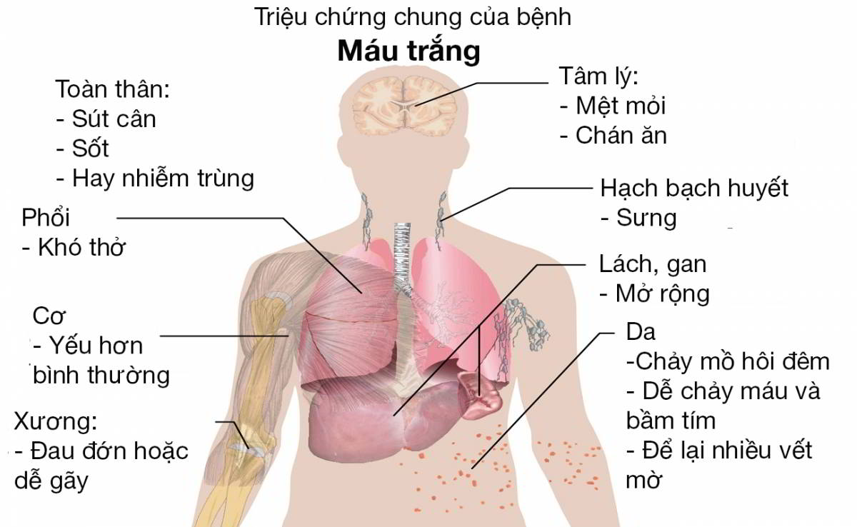 Dấu hiệu ung thư máu