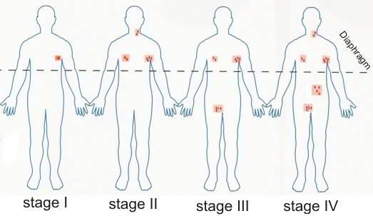 Các giai đoạn ung thư hạch