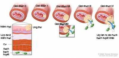 Các giai đoạn ung thư máu
