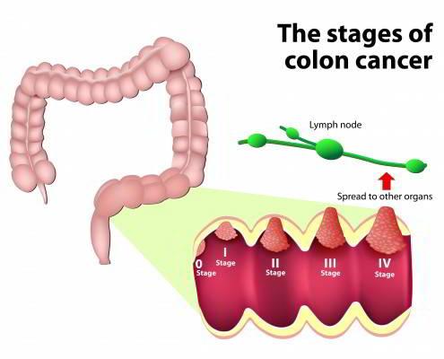 Giai đoạn ung thư ruột