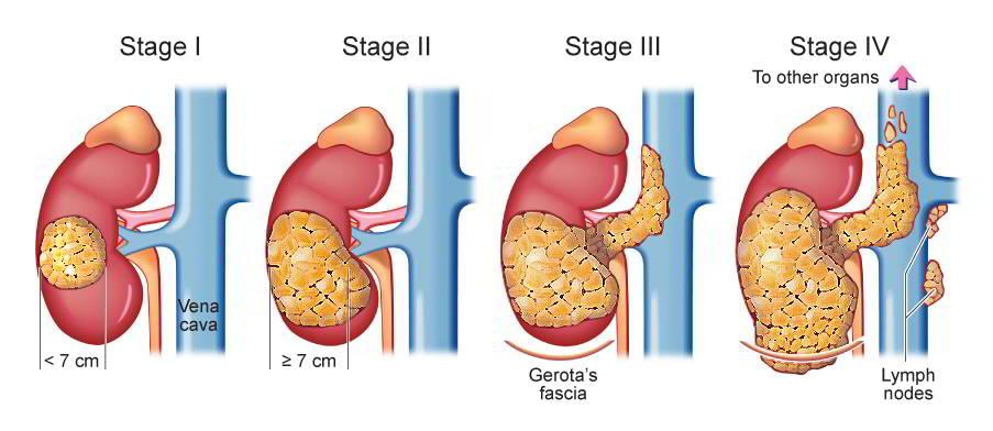 Các giai đoạn ung thư thận