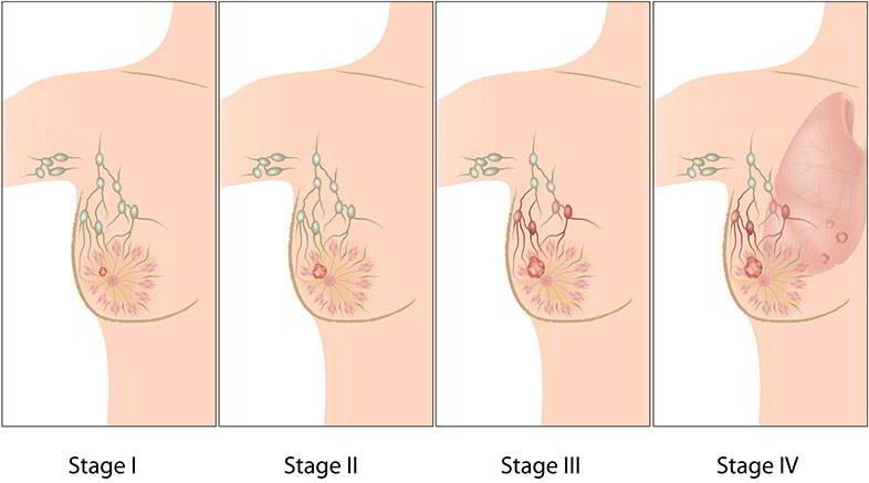 Các giai đoạn ung thư vú