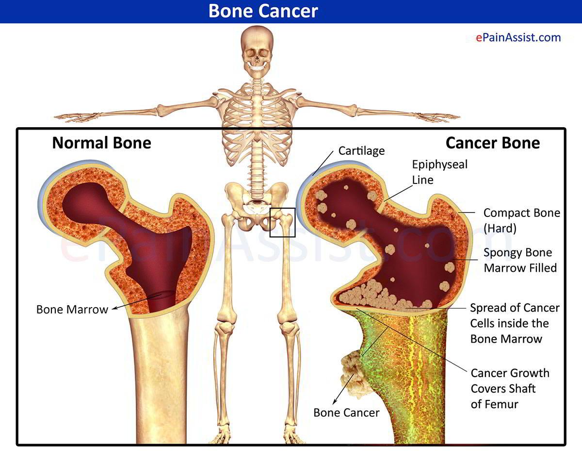 Ung thư xương.