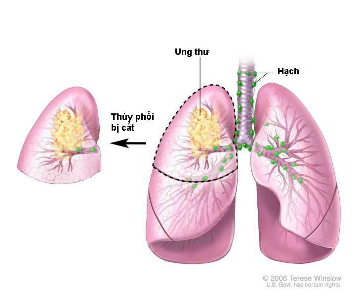 Hiểu đúng về sự lây truyền bệnh ung thư phổi