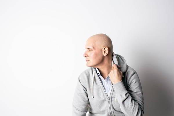 hóa trị gây rụng tóc
