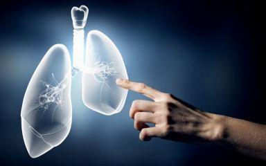 Nguyên nhân ung thư phổi và cách phòng ngừa
