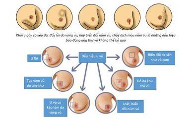 dấu hiệu mắc ung thư vú