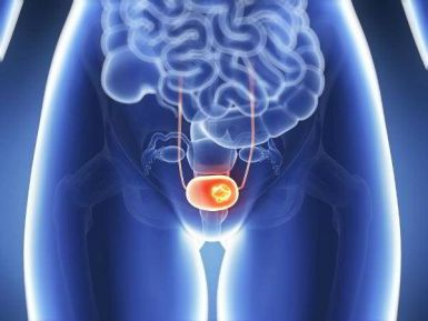 Những kiến thức tổng quan về ung thư bàng quang