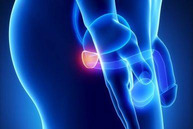 Những điều nam giới nên biết về ung thư tuyến tiền liệt