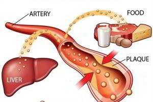 Khả năng giảm cholesterol trong máu của Fucoidan