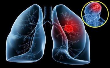 fucoidan chữa ung thư phổi
