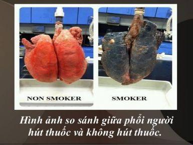 Nguyên nhân và cách phòng ngừa ung thư