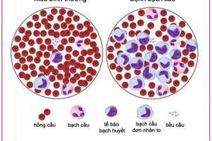 Fucoidan hỗ trợ điều trị ung thư máu hiệu quả
