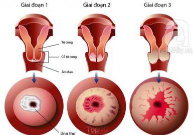 Ứng dụng của Fucoidan trong hỗ trợ phòng và điều trị ung thư cổ tử cung