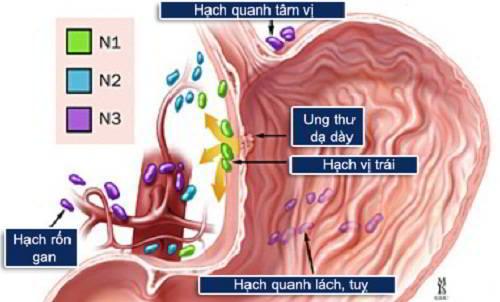 Ung thư dạ dày di căn đến đâu?