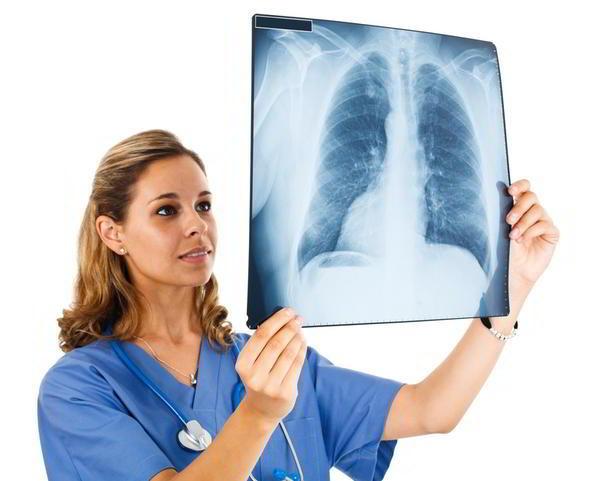 ung thư phổi có chữa khỏi được không
