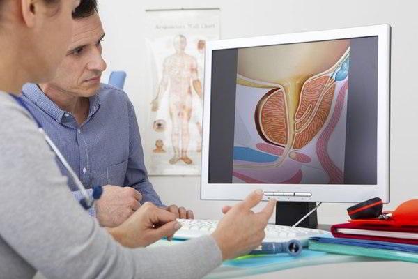 ung thư tuyến tiền liệt thường không gây đau đớn cho người bệnh