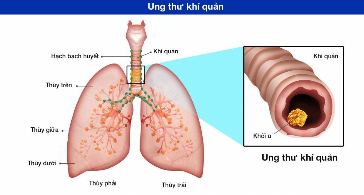 Ung thư khí quản