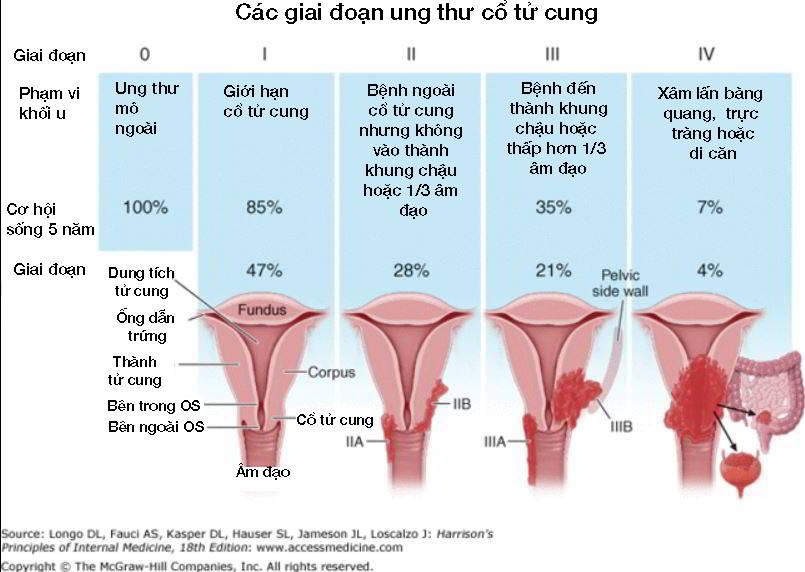Ung thư nội mạc cổ tử cung giai đoạn 0, 1 (1a, 1b), 2 (2a, 2b), 3 (3a, 3b, 3c1, 3c2), 4 (4a, 4b, giai đoạn cuối