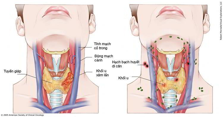 ung thư vòm họng giai đoạn III.