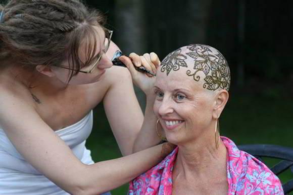 Xạ trị ung thư sống được bao lâu